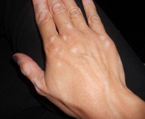Como se llama las manchas blancas en la piel