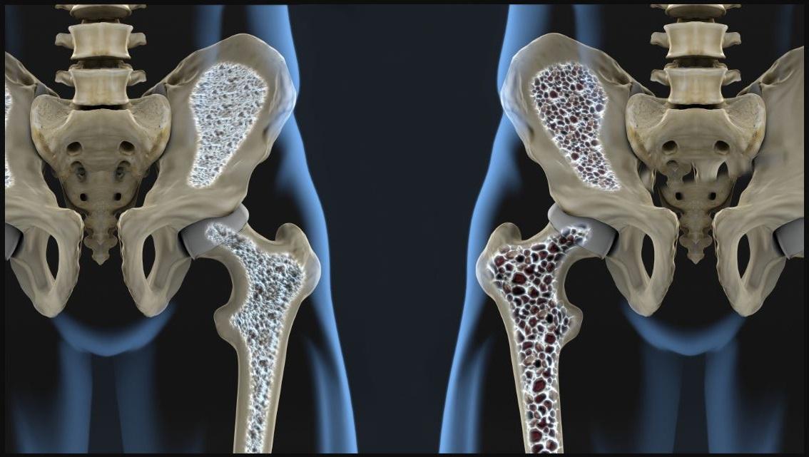 Como se llama la enfermedad de los huesos